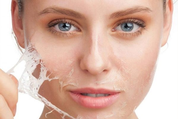Chemical Peel Advanced Facial